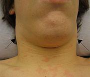 Ganglios inflamados por enfermedad del beso